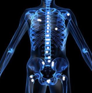 <p>VERDENS FØRSTE: Norskutviklede Xofigo er verdens første kreftmedisin som bruker radioaktive alfastråler for å drepe kreftceller i benmetastaser hos pasienter med prostatakreft. Illustrasjonen viser hvordan kreften sprer seg til knokler. Xofigo er nå kjøpt opp av tyske Bayer.</p>