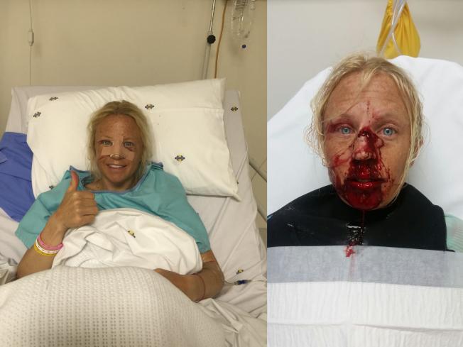 <p>ETTER OPERASJON, OG FØR: Her er Kari Schibevaag etter og før operasjonen.</p>