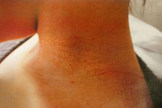 <p>BEVISET: Retten mener disse rød prikkene på halsen til fornærmede beviser at hun ble utsatt for en halsgrep</p>