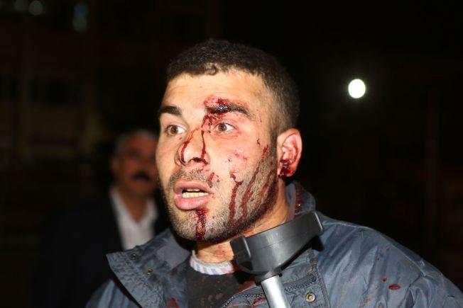 <p>OVERLEVDE: Dogan Asik ble vitne til bombeangrepet som tok minst 33 liv i Ankara søndag ettermiddag.</p>